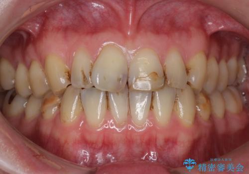前歯のつめもの きれいにしたい 30代男性の治療前