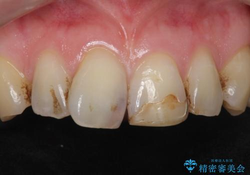 前歯のつめもの きれいにしたい 30代男性の症例 治療前