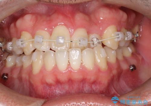 前歯が反対にかんでいる インビザラインとワイヤーを組み合わせた矯正治療の治療中