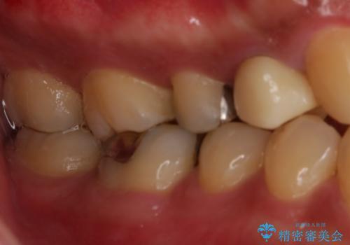銀歯をセラミックにの治療前