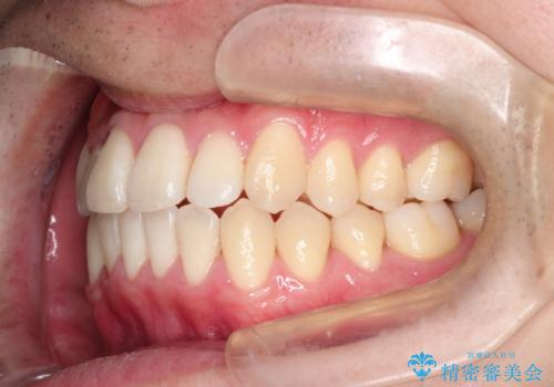 前歯のクロスバイトとガタつきをマウスピース矯正(インビザライン )で治療した症例の治療後