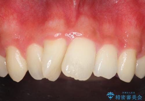 セラミック矯正 気になる前歯の歯並びの改善の治療前
