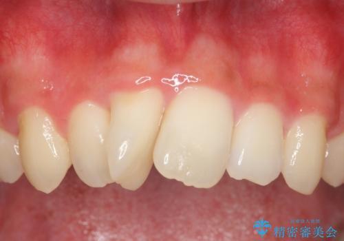 セラミック矯正 気になる前歯の歯並びの改善の症例 治療前
