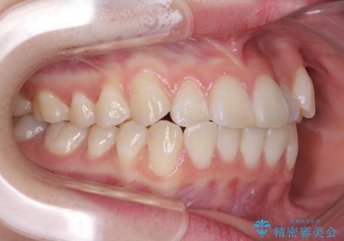 海外留学をしながら歯並びを整えたい インビザラインによる矯正治療の治療前