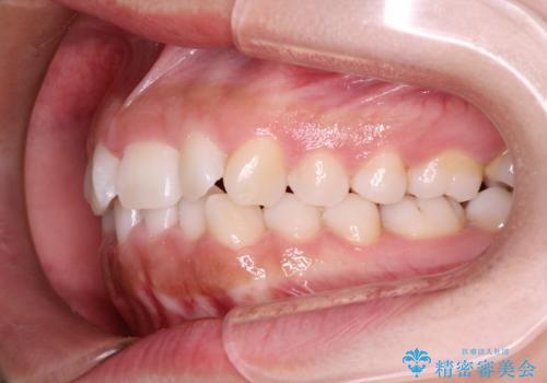 インビザラインを用いた叢生(歯並びのガタつき)の治療の治療前