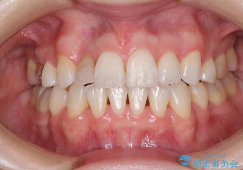 変色した前歯 オーダーメイドタイプのオールセラミッククラウンの治療前