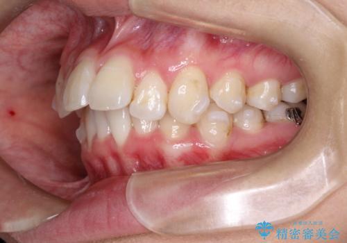 前歯の突出、深い噛み合わせ、ガタつきをマウスピース矯正(インビザライン)で治療した症例の治療中