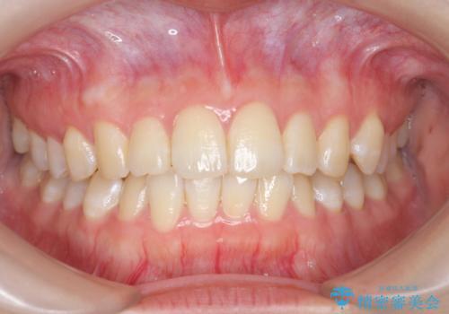 オフィスホワイトニングで、ご自身の歯を白く!の治療前