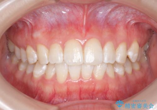 オフィスホワイトニングで、ご自身の歯を白く!の治療後