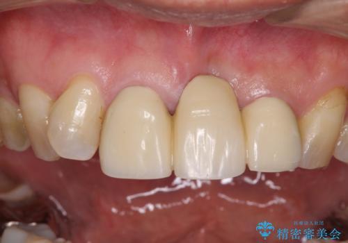 不自然な前歯のブリッジをオールセラミックできれいにの治療前