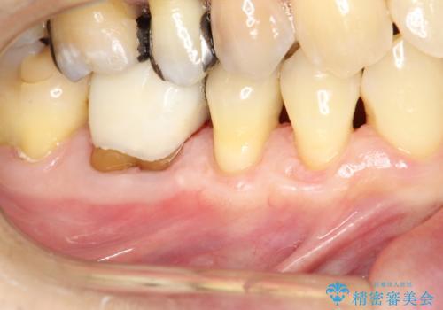 徐々に下がってきた歯肉へ再生療法(歯冠側移動術と結合組織移植術の併用)を施術し、丈夫な歯肉を獲得させた症例の治療後