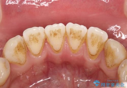 下の歯の裏側の着色の治療前