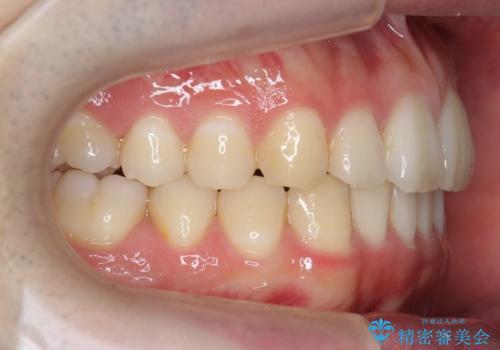 前歯のがたつき・すれちがい咬合を非抜歯で。流行の、格安マウスピースでは難しい、ワンランク上の治療の治療後