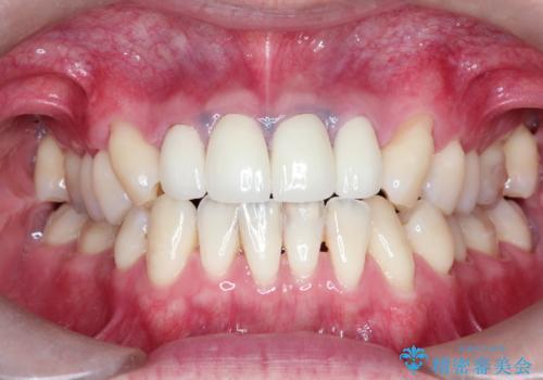前歯の見た目が気になる 矯正・セラミックを組み合わせた治療の症例 治療後