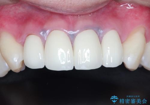 前歯の見た目が気になる 矯正・セラミックを組み合わせた治療の治療後