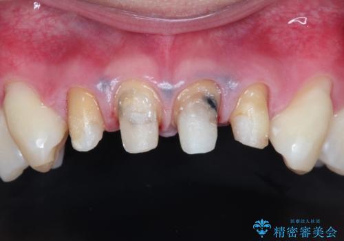 前歯の見た目が気になる 矯正・セラミックを組み合わせた治療の治療中