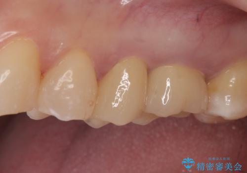 オールセラミッククラウン セラミックインレー 銀歯を白い歯への治療後