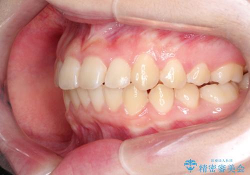 上下の前歯のガタガタを目立たず治したい インビザラインによる見えない矯正の治療後
