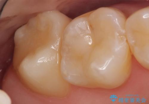 セラミックインレー 冷たいものがしみる奥歯の治療の治療後
