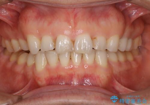 前歯のステイン(着色)をPMTCでキレイにの治療前