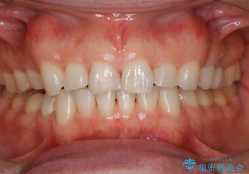 前歯のステイン(着色)をPMTCでキレイにの治療後