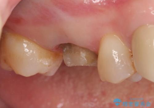 オールセラミッククラウン 他院にて治療困難と言われた歯の治療の治療中
