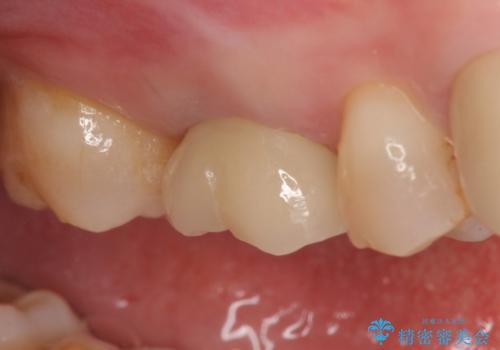 オールセラミッククラウン 他院にて治療困難と言われた歯の治療の治療後