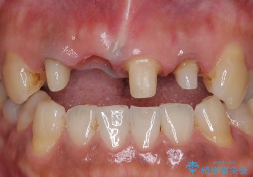 オールセラミッククラウン 折れてしまった前歯の治療の治療中