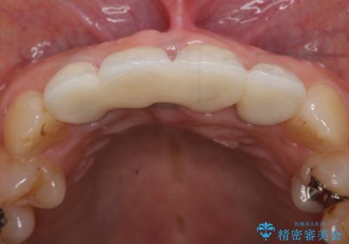 オールセラミッククラウン 折れてしまった前歯の治療の治療後