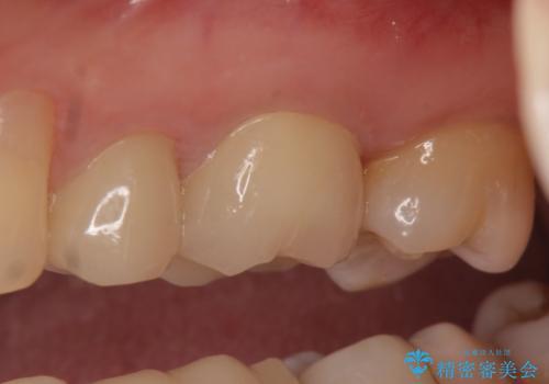 オールセラミッククラウン 痛みが治まらない歯の治療の治療後