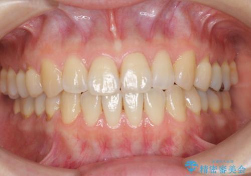矯正治療後、オフィスホワイトニングで歯を白くしてさらに口元を美しく。の治療前