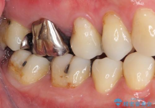 痛む奥歯 セラミッククラウンによるむし歯治療の治療前