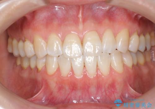 矯正治療後、オフィスホワイトニングで歯を白くしてさらに口元を美しく。の治療後