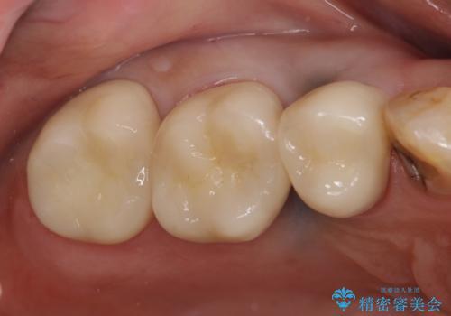オールセラミッククラウン しみる歯の治療の症例 治療後