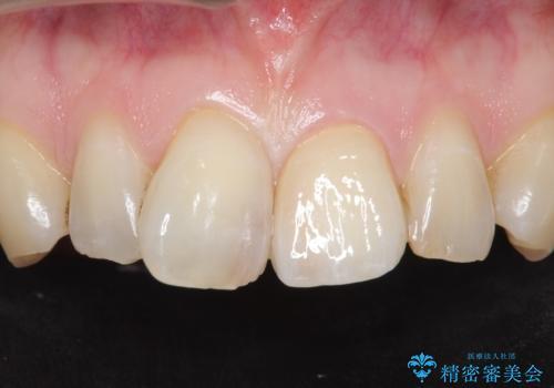 前歯のつめもの きれいにしたい 30代男性の症例 治療後