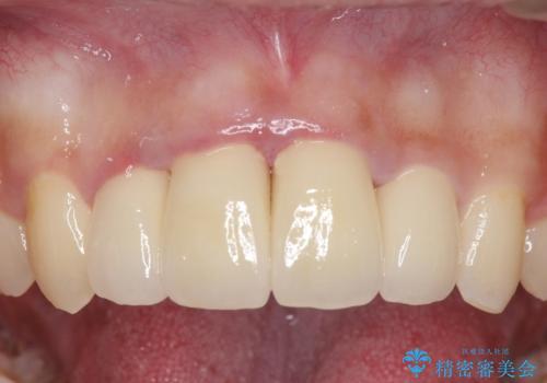 セラミック矯正 気になる前歯の歯並びの改善の症例 治療後