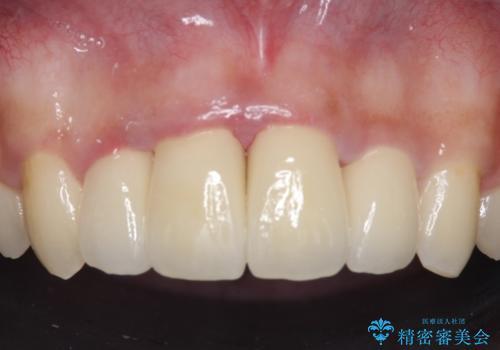 セラミック矯正 気になる前歯の歯並びの改善の治療後