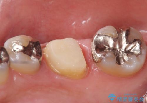 オールセラミッククラウン 他院にて根管治療を勧められた歯の治療の治療中