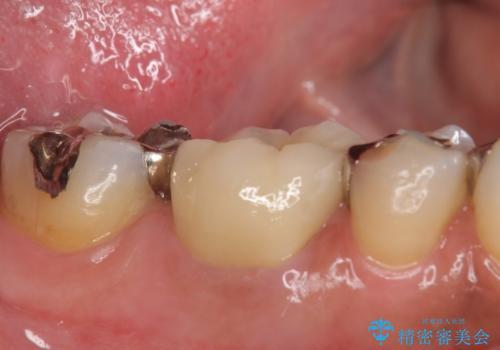 オールセラミッククラウン 他院にて根管治療を勧められた歯の治療の治療後