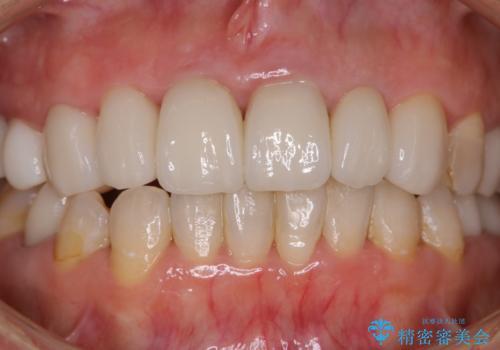 数年ぶりに歯科医院にて歯のクリーニングの治療前