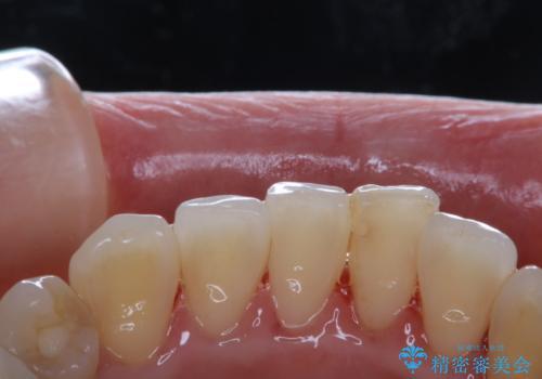 数年ぶりに歯科医院にて歯のクリーニングの治療後