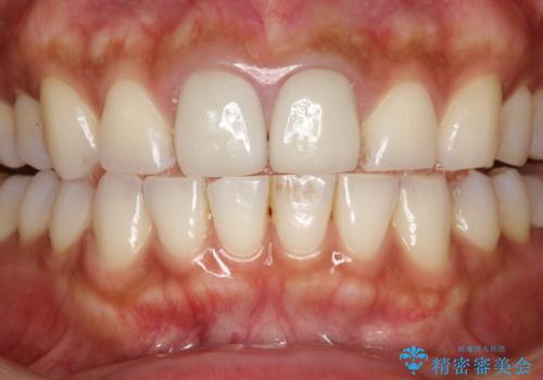 30分のPMTCで前歯の着色落としの治療前