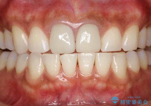 30分のPMTCで前歯の着色落としの治療後