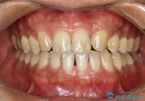 ステイン除去 PMTCの治療前