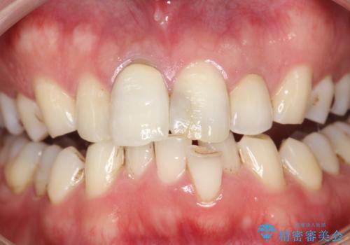 3年ぶりに歯科医院でお掃除 PMTCの治療前