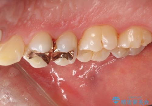 3年ぶりに歯科医院でお掃除 PMTCの治療後