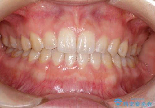 前歯の隙間を閉じたい インビザラインによる矯正の症例 治療後