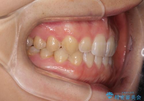 前歯の隙間を閉じたい インビザラインによる矯正の治療後