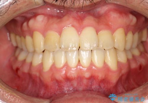 前歯が反対にかんでいる インビザラインとワイヤーを組み合わせた矯正治療の症例 治療後