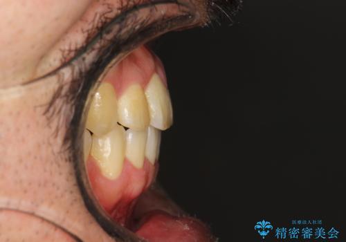 前歯が反対にかんでいる インビザラインとワイヤーを組み合わせた矯正治療の治療後